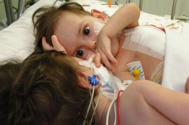 Após cirurgia de separação, irmãs se recuperam em Passo Fundo Ender Machado Monteiro/Divulgação