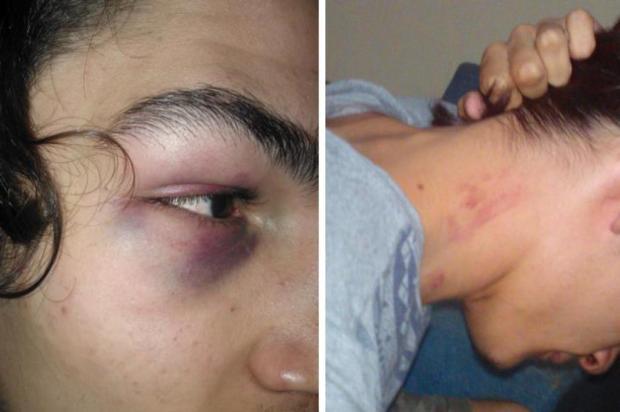 Jovens são agredidos na Cidade Baixa, em Porto Alegre Arquivo Pessoal/Arquivo Pessoal