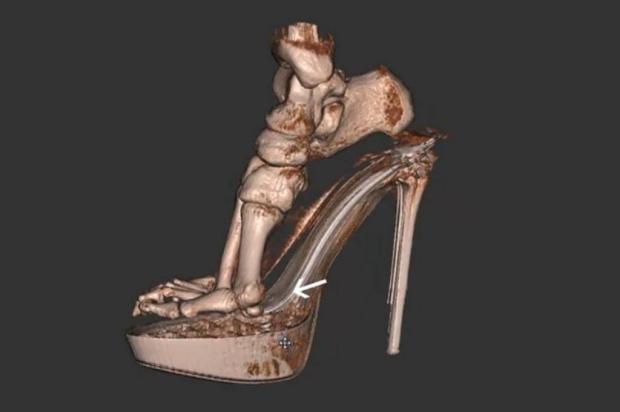 Scanner 3D mostra o efeito do salto alto nos pés Reprodução/Youtube