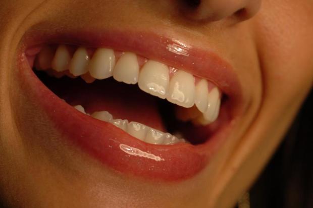 Conheça seis erros que devem ser evitados ao escovar os dentes Adriana Franciosi/Agencia RBS